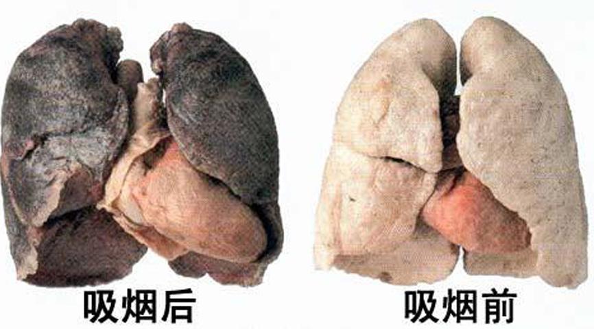 吸烟前后肺.jpg